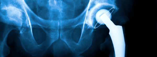 Metal on metal hip replacements have been found to increase the risk of long term inflammation