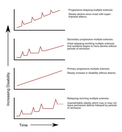 MS progression chart