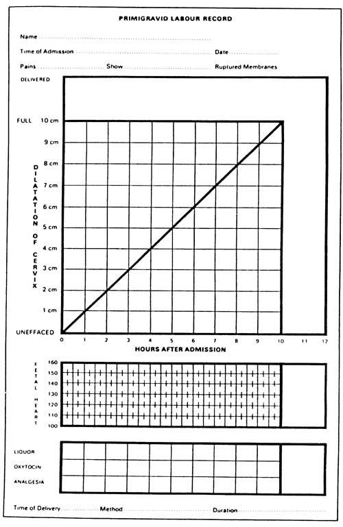 DUBLIN PARTOGRAM (OM214a.jpg)