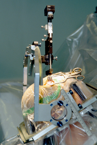 Insertion of an electrode during deep brain stimulation for Parkinson's disease.