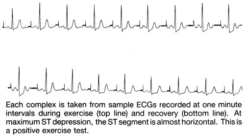 Sample ECG's recorded at one minute intervals